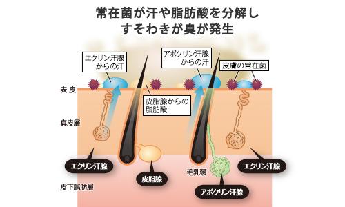アポクリン汗腺の汗と常在菌がすそわきが臭の原因